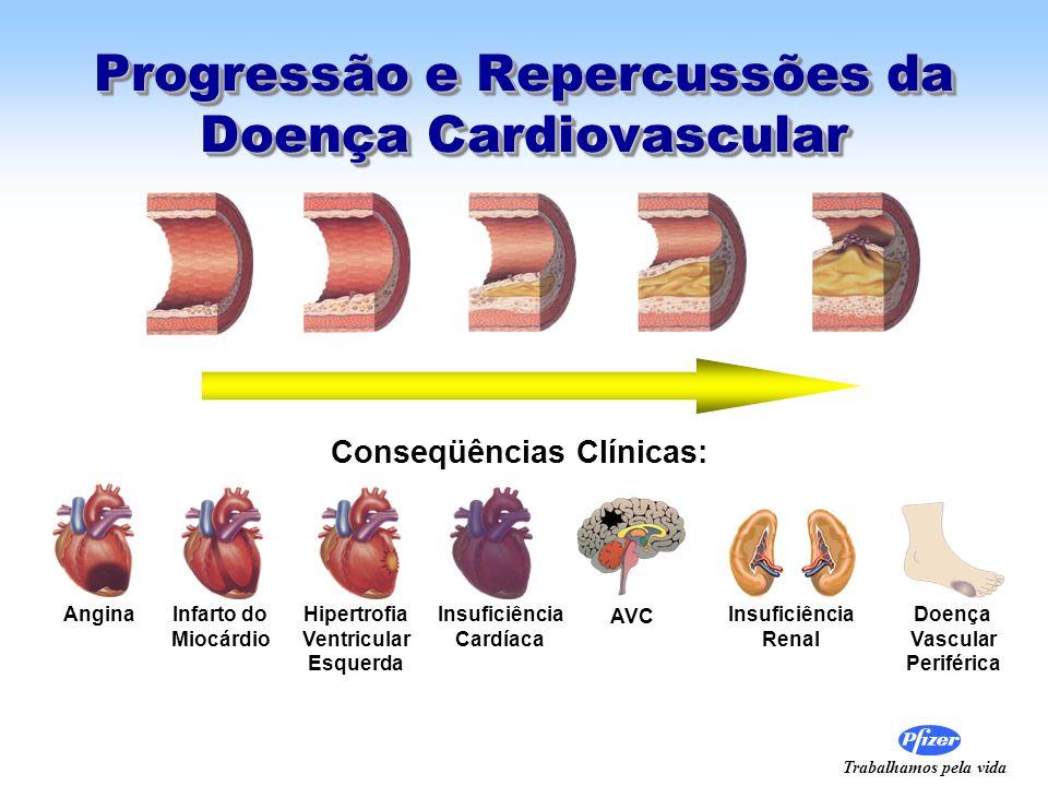 Trabalhamos pela vida Progressão e Repercussões da Doença Cardiovascular AnginaInfarto do Miocárdio Hipertrofia Ventricular Esquerda Insuficiência Car