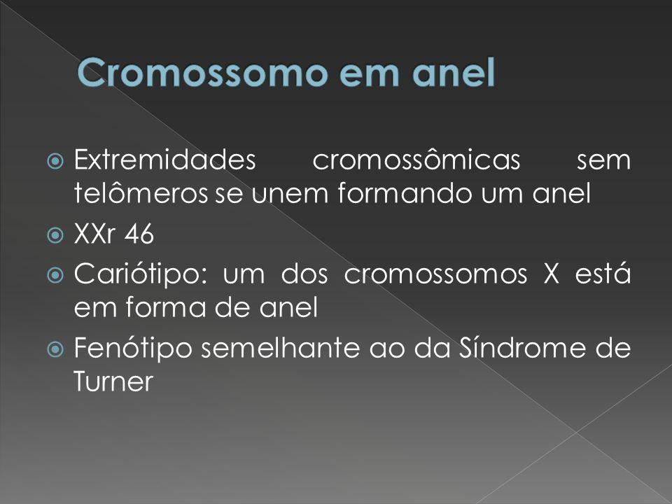 Extremidades cromossômicas sem telômeros se unem formando um anel XXr 46 Cariótipo: um dos cromossomos X está em forma de anel Fenótipo semelhante ao