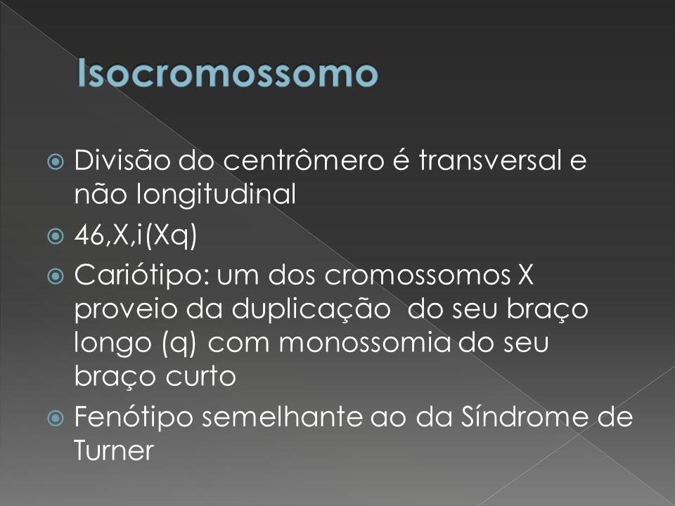 Divisão do centrômero é transversal e não longitudinal 46,X,i(Xq) Cariótipo: um dos cromossomos X proveio da duplicação do seu braço longo (q) com mon