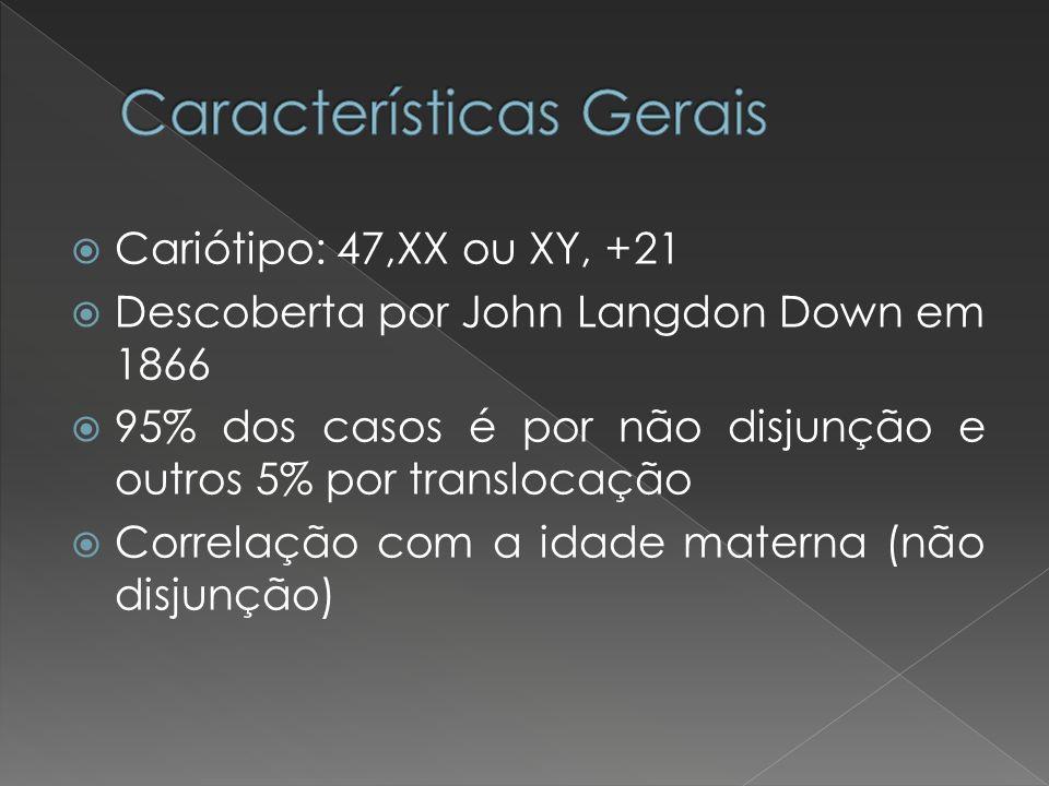 Cariótipo: 47,XX ou XY, +21 Descoberta por John Langdon Down em 1866 95% dos casos é por não disjunção e outros 5% por translocação Correlação com a i