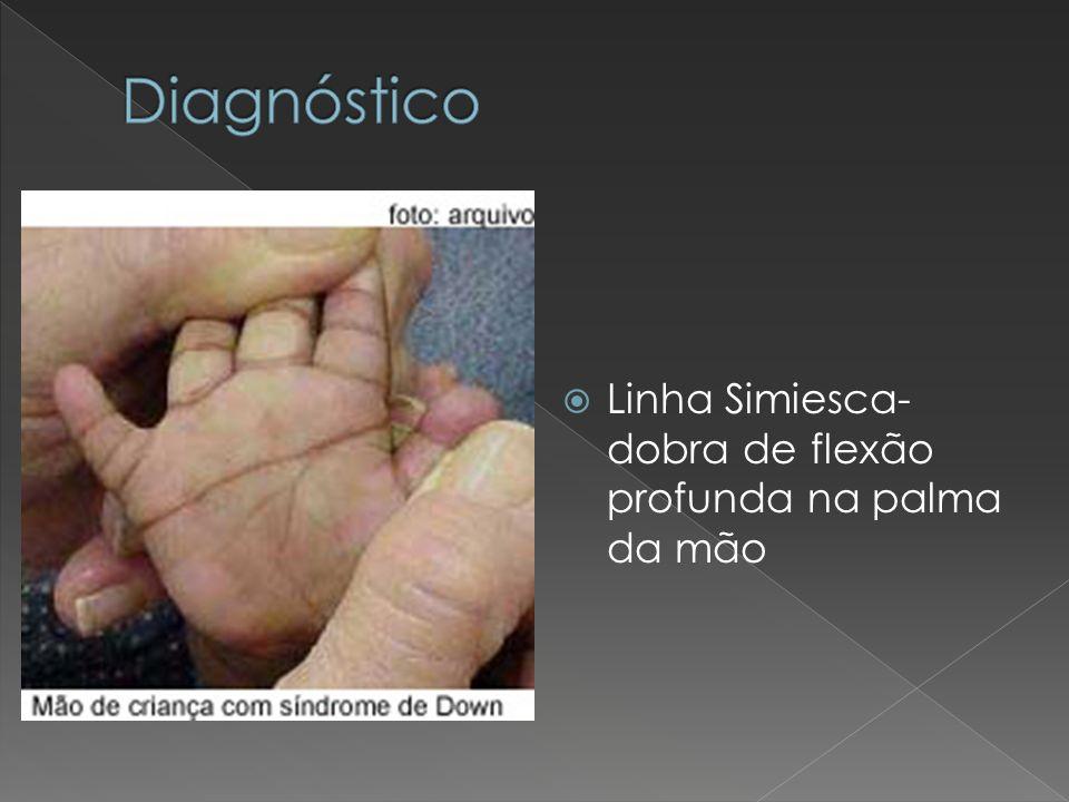 Linha Simiesca- dobra de flexão profunda na palma da mão