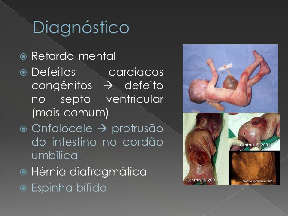 Retardo mental Defeitos cardíacos congênitos defeito no septo ventricular (mais comum) Onfalocele protrusão do intestino no cordão umbilical Hérnia di