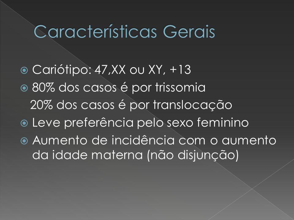 Cariótipo: 47,XX ou XY, +13 80% dos casos é por trissomia 20% dos casos é por translocação Leve preferência pelo sexo feminino Aumento de incidência c