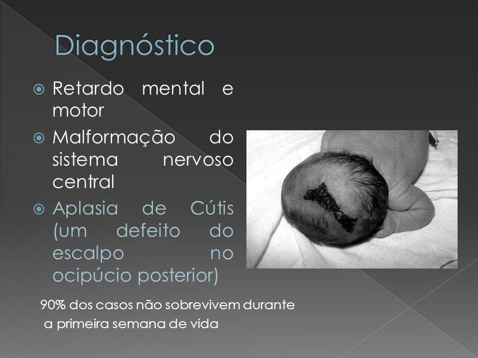 Retardo mental e motor Malformação do sistema nervoso central Aplasia de Cútis (um defeito do escalpo no ocipúcio posterior) 90% dos casos não sobrevi