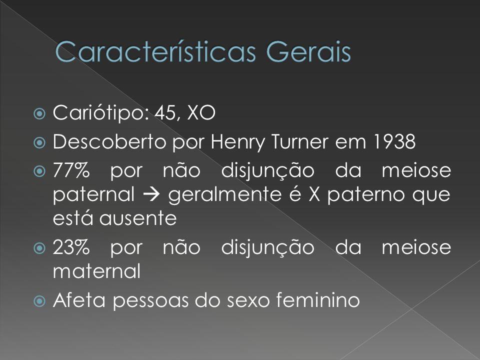 Cariótipo: 45, XO Descoberto por Henry Turner em 1938 77% por não disjunção da meiose paternal geralmente é X paterno que está ausente 23% por não dis