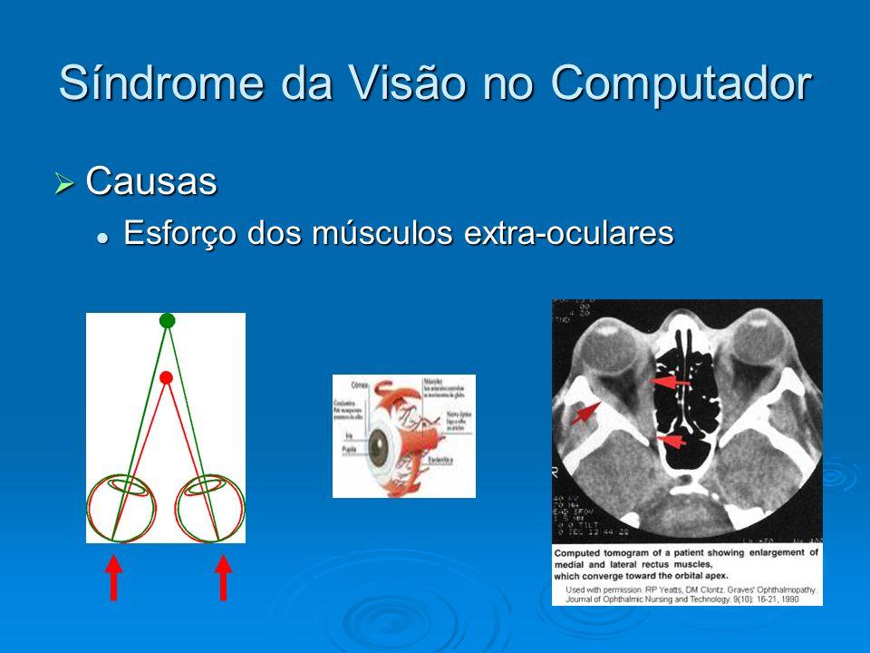 Síndrome da Visão no Computador Causas Causas Esforço dos músculos extra-oculares Esforço dos músculos extra-oculares