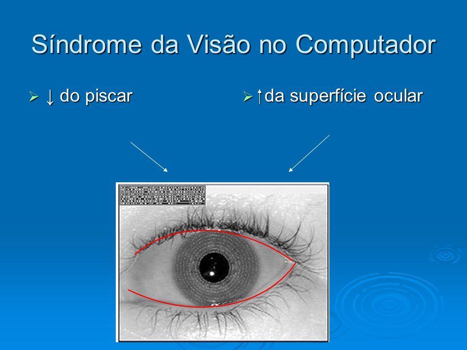 Síndrome da Visão no Computador do piscar do piscar da superfície ocular da superfície ocular OLHO SECO