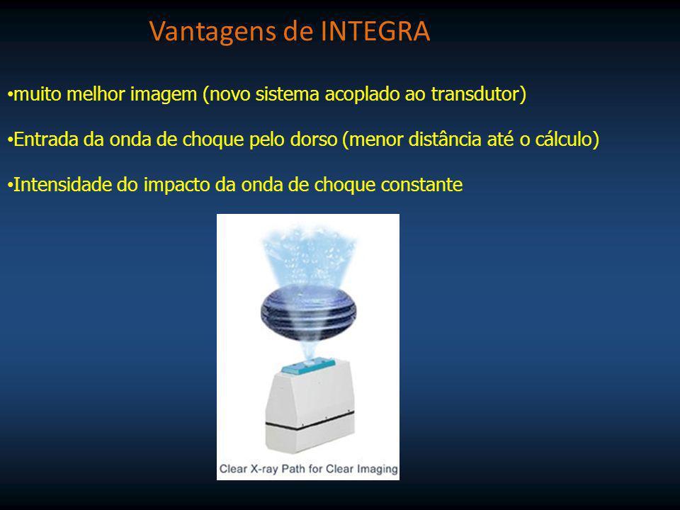 Melhor contrôle do número de disparos Melhor contrôle de eficiência do transdutor (300.000 disparos) Melhor contrôle da fragmentação do cálculo 20 níveis de potência da onda de choque Vantagens de INTEGRA