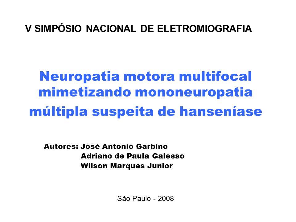 Neuropatia motora multifocal mimetizando mononeuropatia múltipla suspeita de hanseníase Autores: José Antonio Garbino Adriano de Paula Galesso Wilson