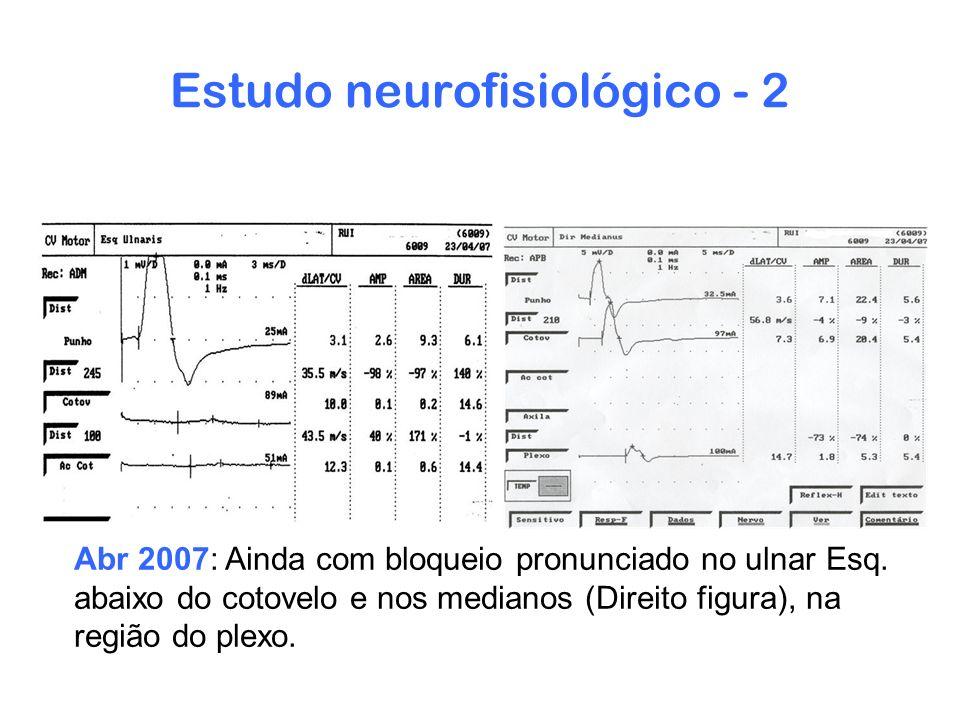 Estudo neurofisiológico - 2 Abr 2007: Ainda com bloqueio pronunciado no ulnar Esq. abaixo do cotovelo e nos medianos (Direito figura), na região do pl