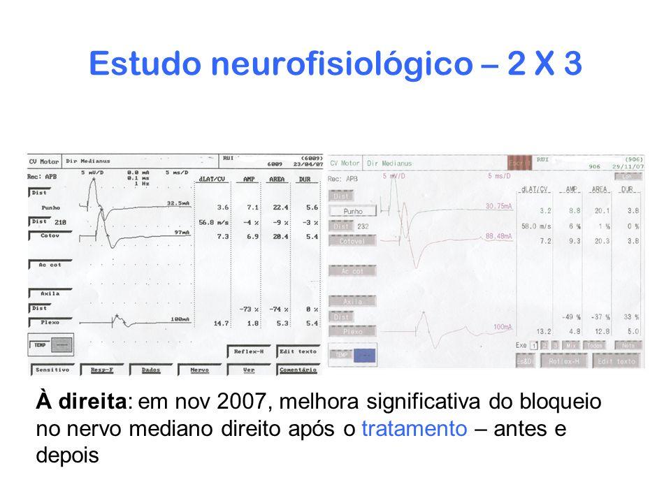 Estudo neurofisiológico – 2 X 3 À direita: em nov 2007, melhora significativa do bloqueio no nervo mediano direito após o tratamento – antes e depois