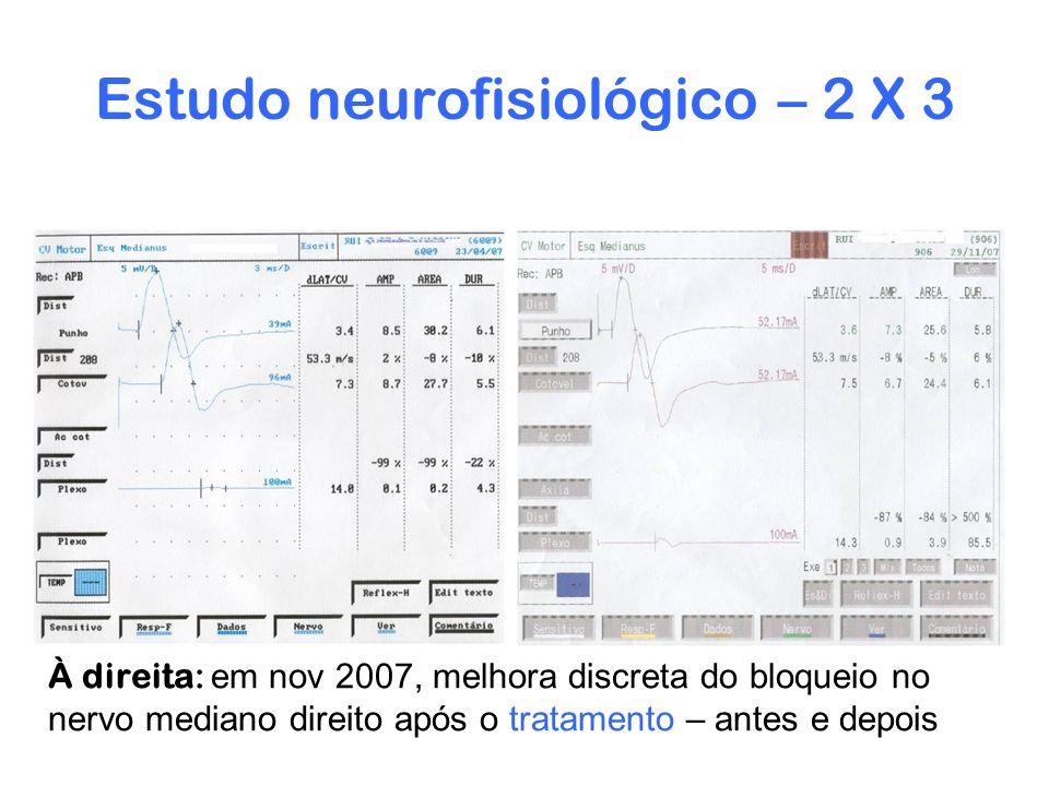 Estudo neurofisiológico – 2 X 3 À direita: em nov 2007, melhora discreta do bloqueio no nervo mediano direito após o tratamento – antes e depois