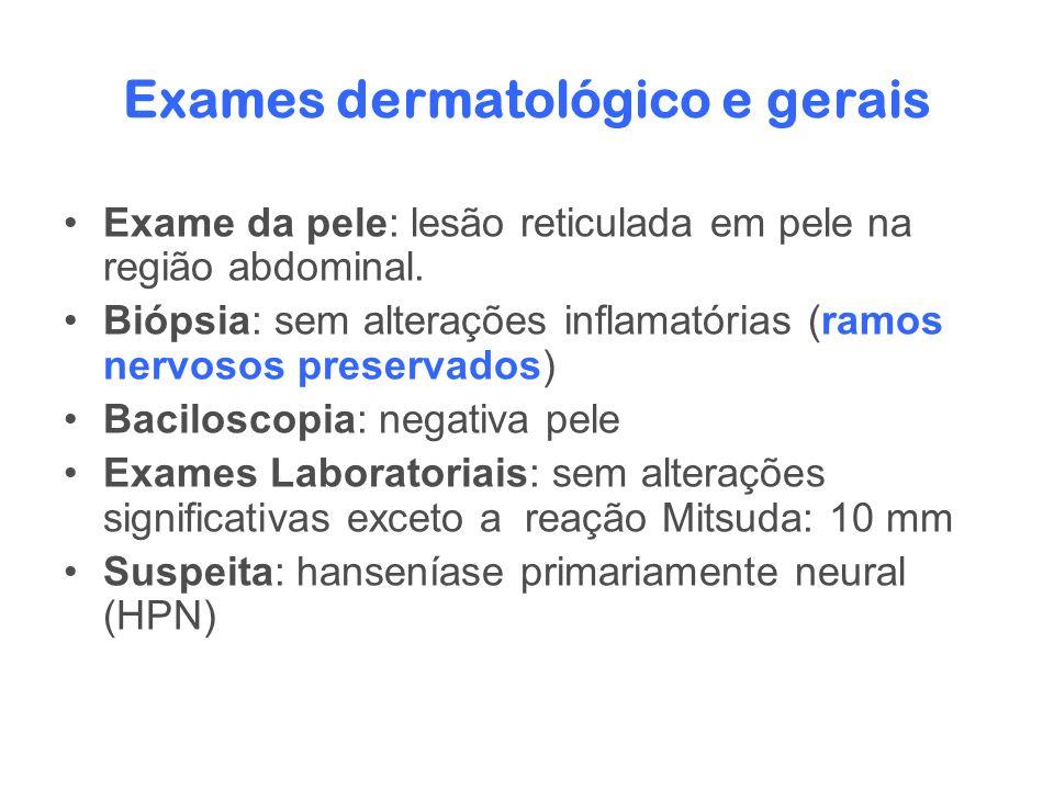 Exames dermatológico e gerais Exame da pele: lesão reticulada em pele na região abdominal. Biópsia: sem alterações inflamatórias (ramos nervosos prese
