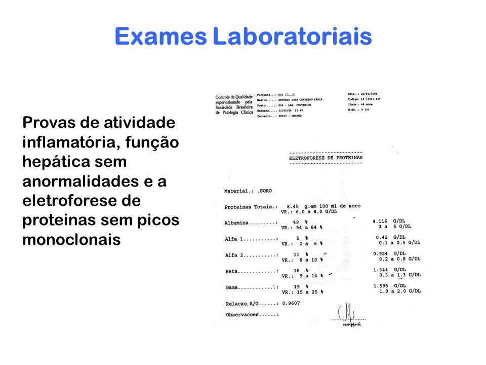 Exames Laboratoriais Provas de atividade inflamatória, função hepática sem anormalidades e a eletroforese de proteinas sem picos monoclonais