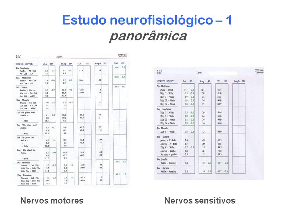 Estudo neurofisiológico – 1 panorâmica Nervos motoresNervos sensitivos