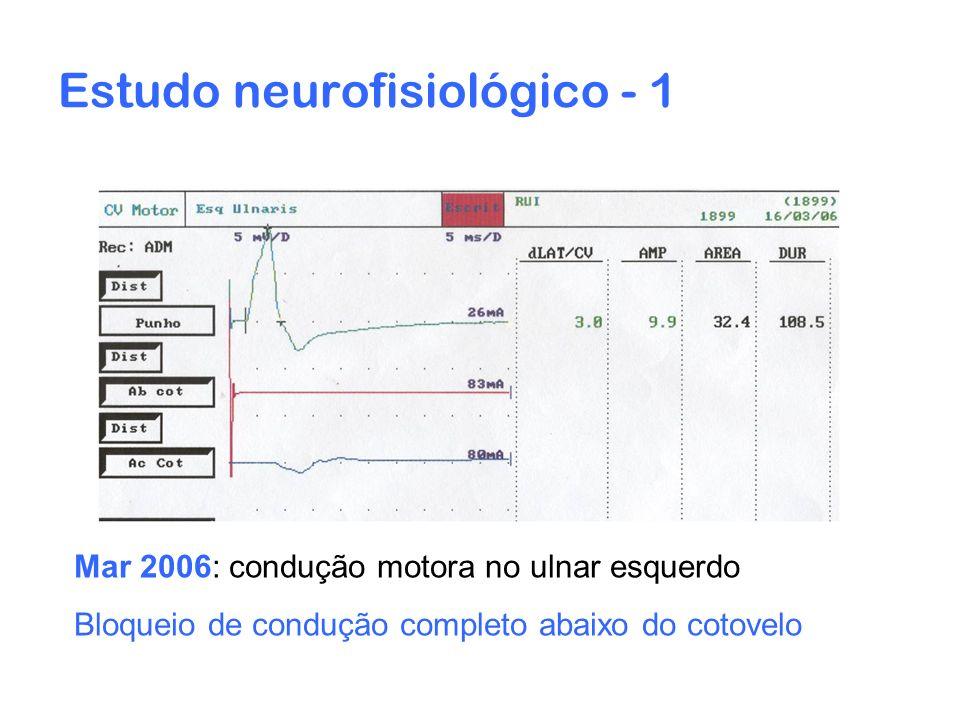 Estudo neurofisiológico - 1 Mar 2006: condução motora no ulnar esquerdo Bloqueio de condução completo abaixo do cotovelo