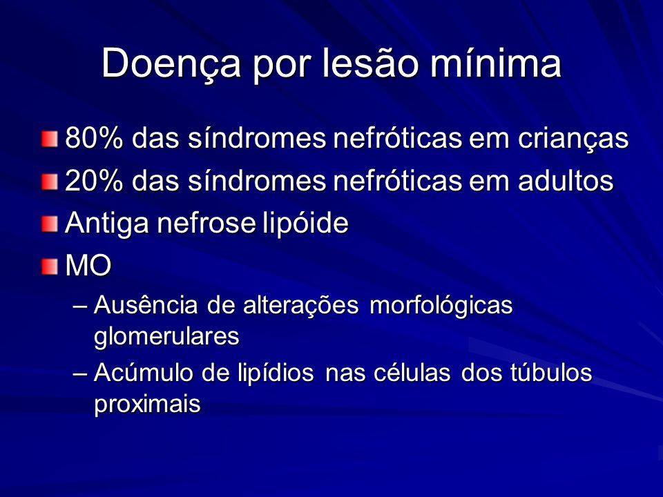 Doença por lesão mínima 80% das síndromes nefróticas em crianças 20% das síndromes nefróticas em adultos Antiga nefrose lipóide MO –Ausência de altera