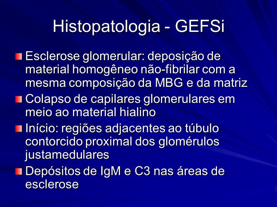 Histopatologia - GEFSi Esclerose glomerular: deposição de material homogêneo não-fibrilar com a mesma composição da MBG e da matriz Colapso de capilar