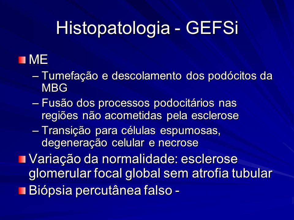Histopatologia - GEFSi ME –Tumefação e descolamento dos podócitos da MBG –Fusão dos processos podocitários nas regiões não acometidas pela esclerose –