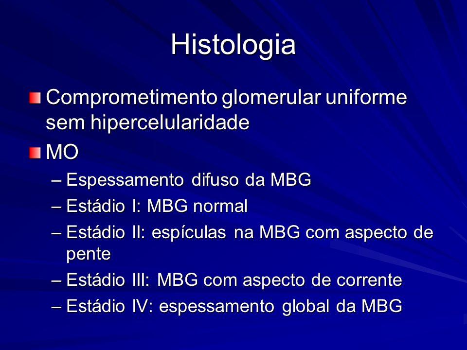 Histologia Comprometimento glomerular uniforme sem hipercelularidade MO –Espessamento difuso da MBG –Estádio I: MBG normal –Estádio II: espículas na M