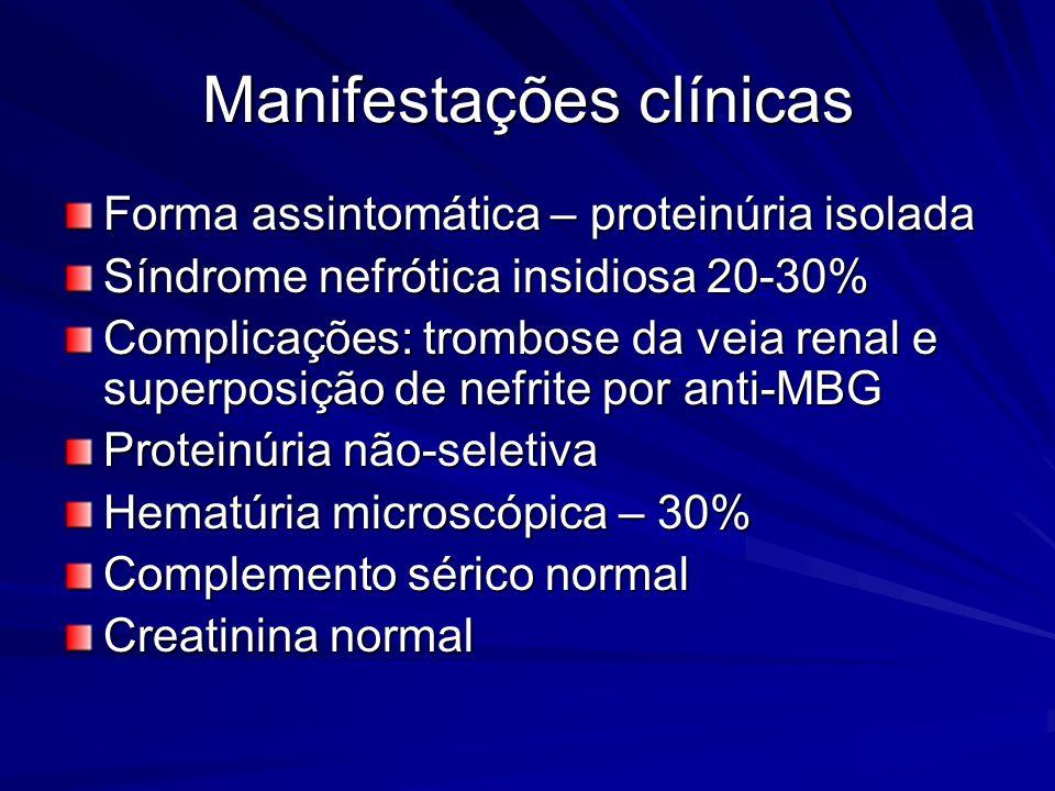 Manifestações clínicas Forma assintomática – proteinúria isolada Síndrome nefrótica insidiosa 20-30% Complicações: trombose da veia renal e superposiç