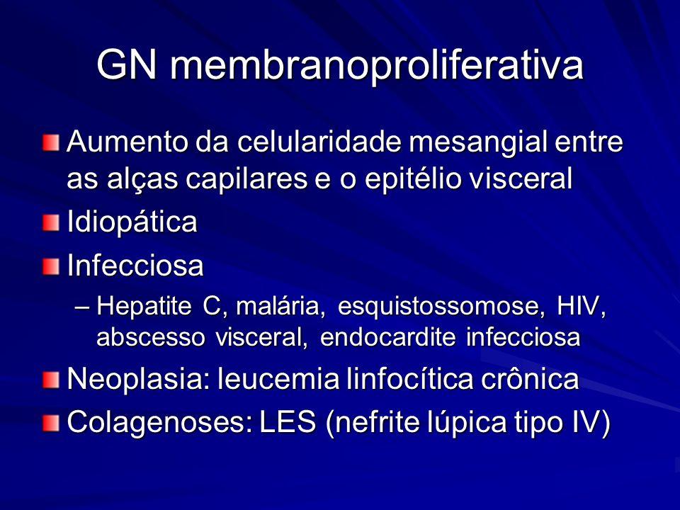 GN membranoproliferativa Aumento da celularidade mesangial entre as alças capilares e o epitélio visceral IdiopáticaInfecciosa –Hepatite C, malária, e