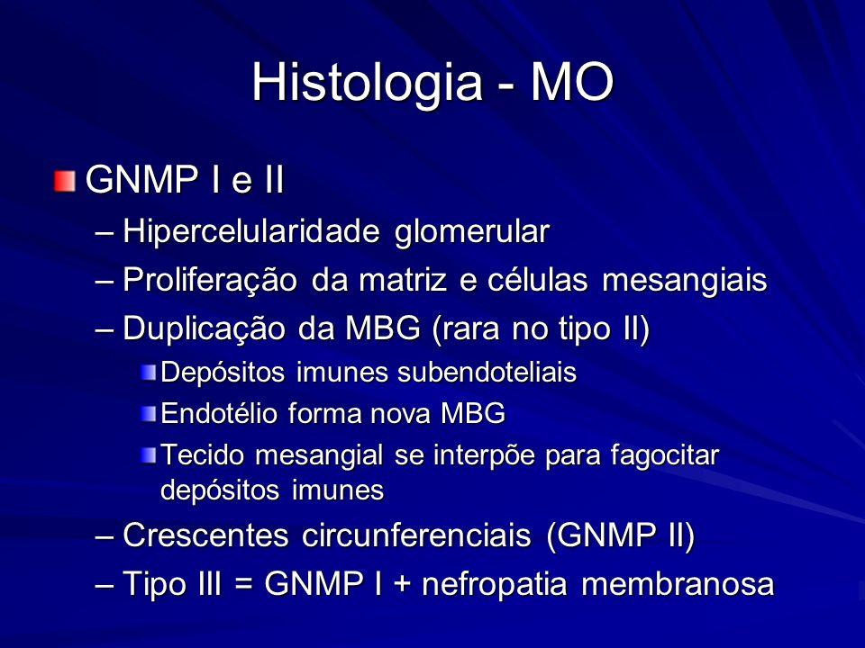 Histologia - MO GNMP I e II –Hipercelularidade glomerular –Proliferação da matriz e células mesangiais –Duplicação da MBG (rara no tipo II) Depósitos
