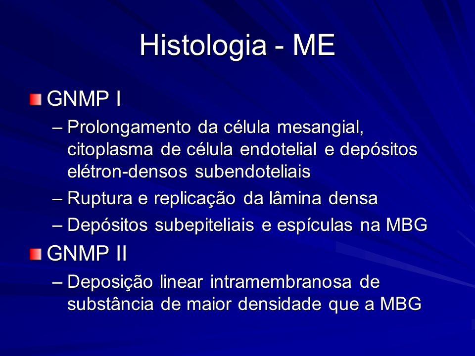 Histologia - ME GNMP I –Prolongamento da célula mesangial, citoplasma de célula endotelial e depósitos elétron-densos subendoteliais –Ruptura e replic