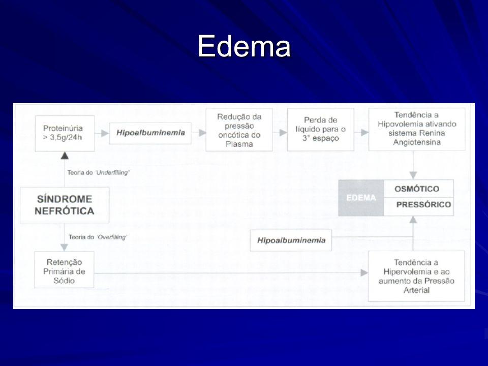 Introdução Diagnóstico de exclusão Principais causas de síndrome nefrótica secundária a doenças sistêmicas: DM e amiloidose Classificação histopatológica através da análise por MO, ME e MIF