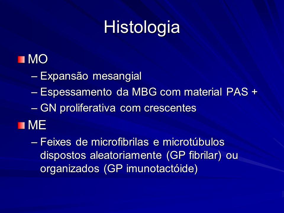 Histologia MO –Expansão mesangial –Espessamento da MBG com material PAS + –GN proliferativa com crescentes ME –Feixes de microfibrilas e microtúbulos