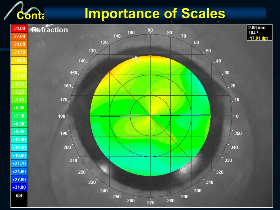 Contact Lens Migrate Inferiorly causing diplopia Aplicações do Wavefront Entendendo as queixas do paciente Importance of Scales