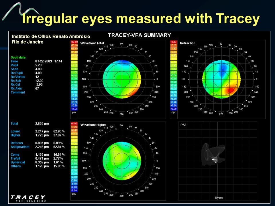 Instituto de Olhos Renato Ambrósio Rio de Janeiro Irregular eyes measured with Tracey