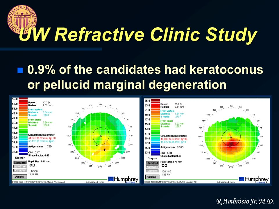 n 0.9% of the candidates had keratoconus or pellucid marginal degeneration UW Refractive Clinic Study R.Ambrósio Jr, M.D.