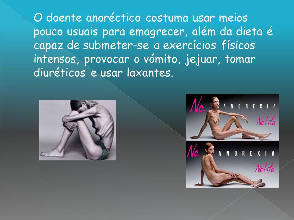 O doente anoréctico costuma usar meios pouco usuais para emagrecer, além da dieta é capaz de submeter-se a exercícios físicos intensos, provocar o vóm