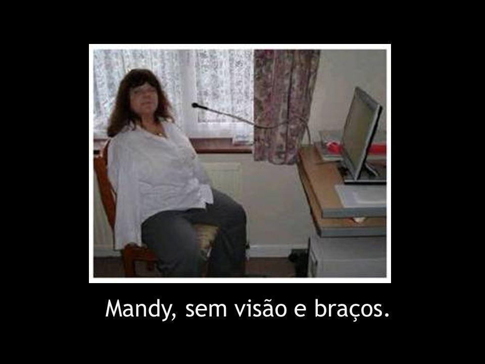 Mandy, sem visão e braços.