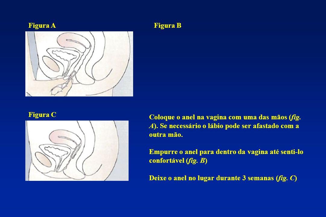 Coloque o anel na vagina com uma das mãos (fig. A). Se necessário o lábio pode ser afastado com a outra mão. Empurre o anel para dentro da vagina até