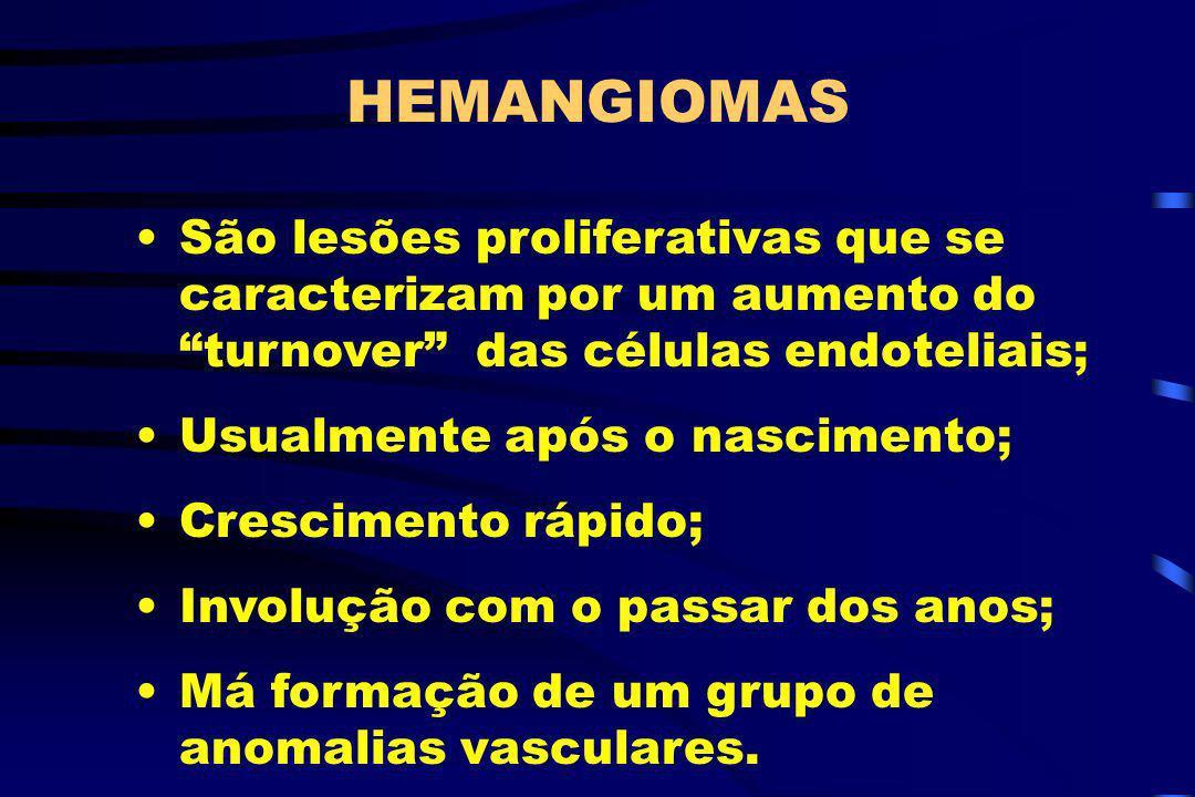 HEMANGIOMAS São lesões proliferativas que se caracterizam por um aumento do turnover das células endoteliais; Usualmente após o nascimento; Cresciment