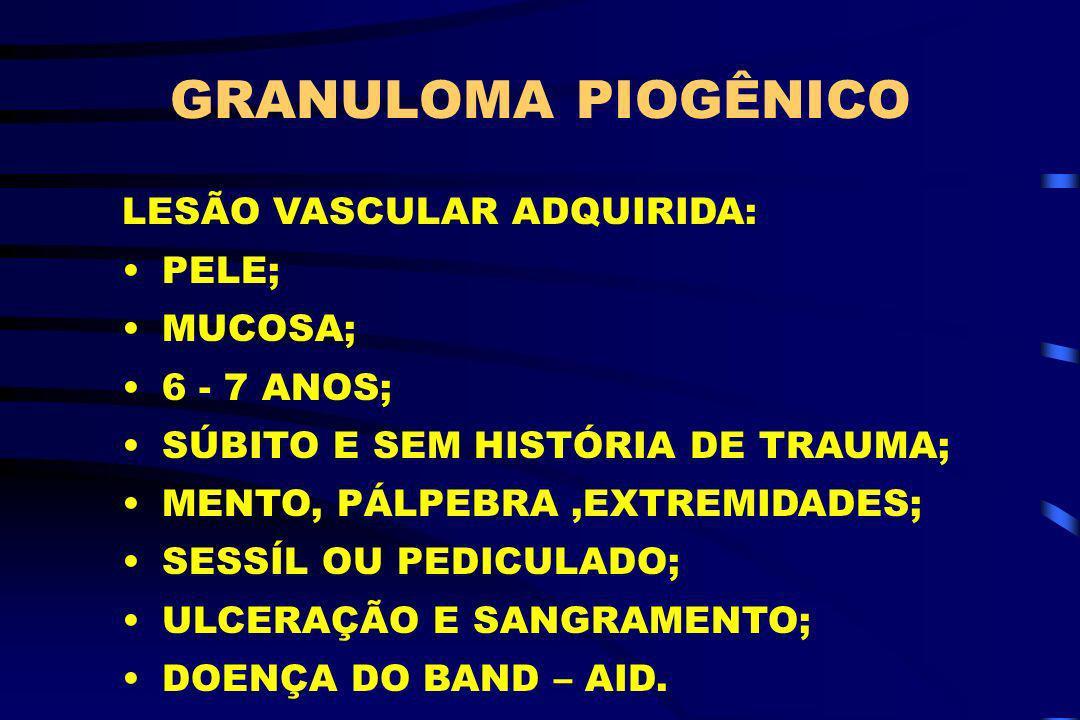 GRANULOMA PIOGÊNICO LESÃO VASCULAR ADQUIRIDA: PELE; MUCOSA; 6 - 7 ANOS; SÚBITO E SEM HISTÓRIA DE TRAUMA; MENTO, PÁLPEBRA,EXTREMIDADES; SESSÍL OU PEDIC