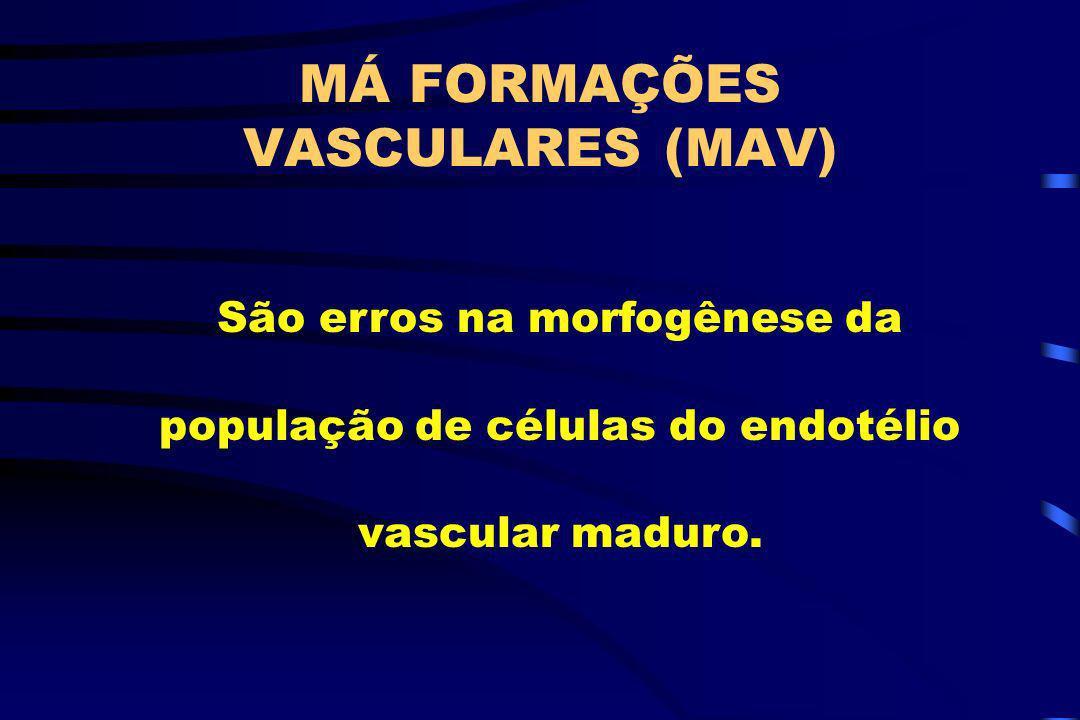 MÁ FORMAÇÕES VASCULARES (MAV) São erros na morfogênese da população de células do endotélio vascular maduro.