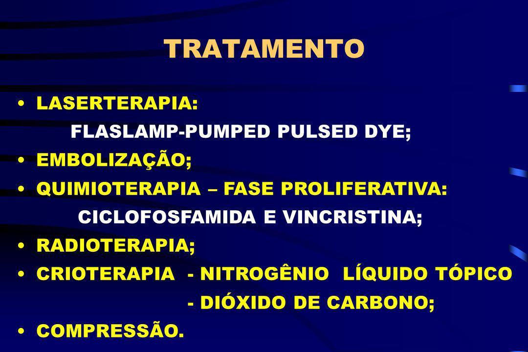 TRATAMENTO LASERTERAPIA: FLASLAMP-PUMPED PULSED DYE; EMBOLIZAÇÃO; QUIMIOTERAPIA – FASE PROLIFERATIVA: CICLOFOSFAMIDA E VINCRISTINA; RADIOTERAPIA; CRIO