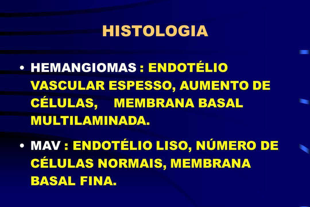 HISTOLOGIA HEMANGIOMAS : ENDOTÉLIO VASCULAR ESPESSO, AUMENTO DE CÉLULAS, MEMBRANA BASAL MULTILAMINADA. MAV : ENDOTÉLIO LISO, NÚMERO DE CÉLULAS NORMAIS