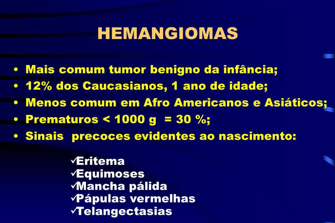 HEMANGIOMAS Mais comum tumor benigno da infância; 12% dos Caucasianos, 1 ano de idade; Menos comum em Afro Americanos e Asiáticos; Prematuros < 1000 g
