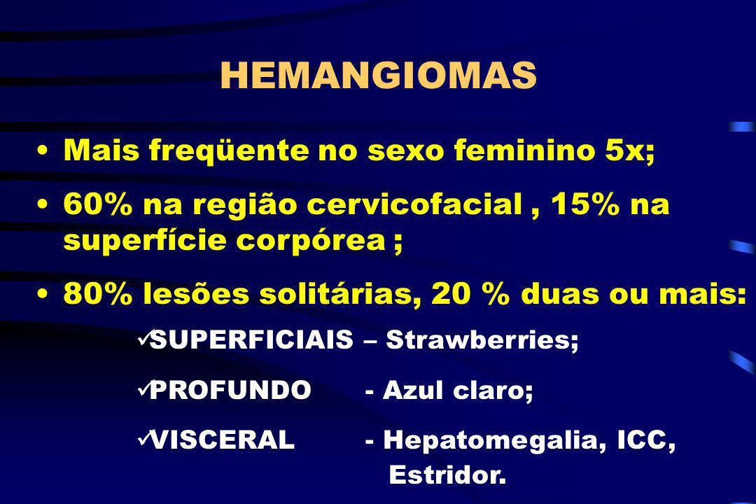 HEMANGIOMAS Mais freqüente no sexo feminino 5x; 60% na região cervicofacial, 15% na superfície corpórea ; 80% lesões solitárias, 20 % duas ou mais: SU
