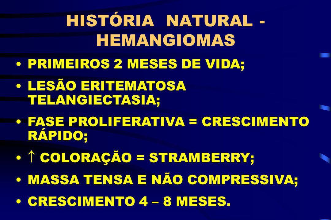 HISTÓRIA NATURAL - HEMANGIOMAS PRIMEIROS 2 MESES DE VIDA; LESÃO ERITEMATOSA TELANGIECTASIA; FASE PROLIFERATIVA = CRESCIMENTO RÁPIDO; COLORAÇÃO = STRAM