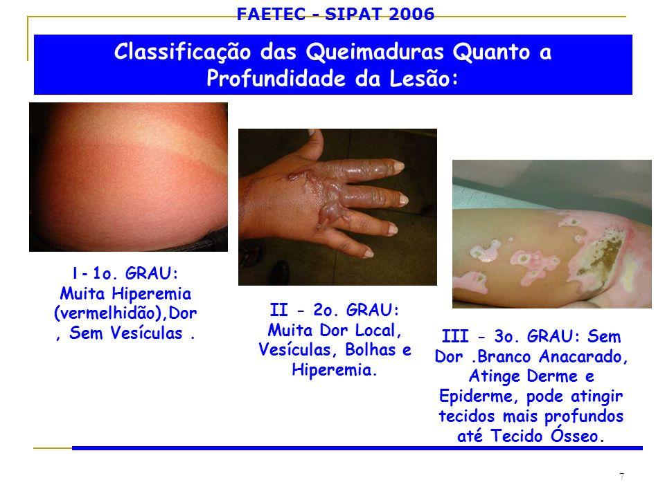 FAETEC - SIPAT 2006 7 Classificação das Queimaduras Quanto a Profundidade da Lesão: I - 1o. GRAU: Muita Hiperemia (vermelhidão),Dor, Sem Vesículas. II