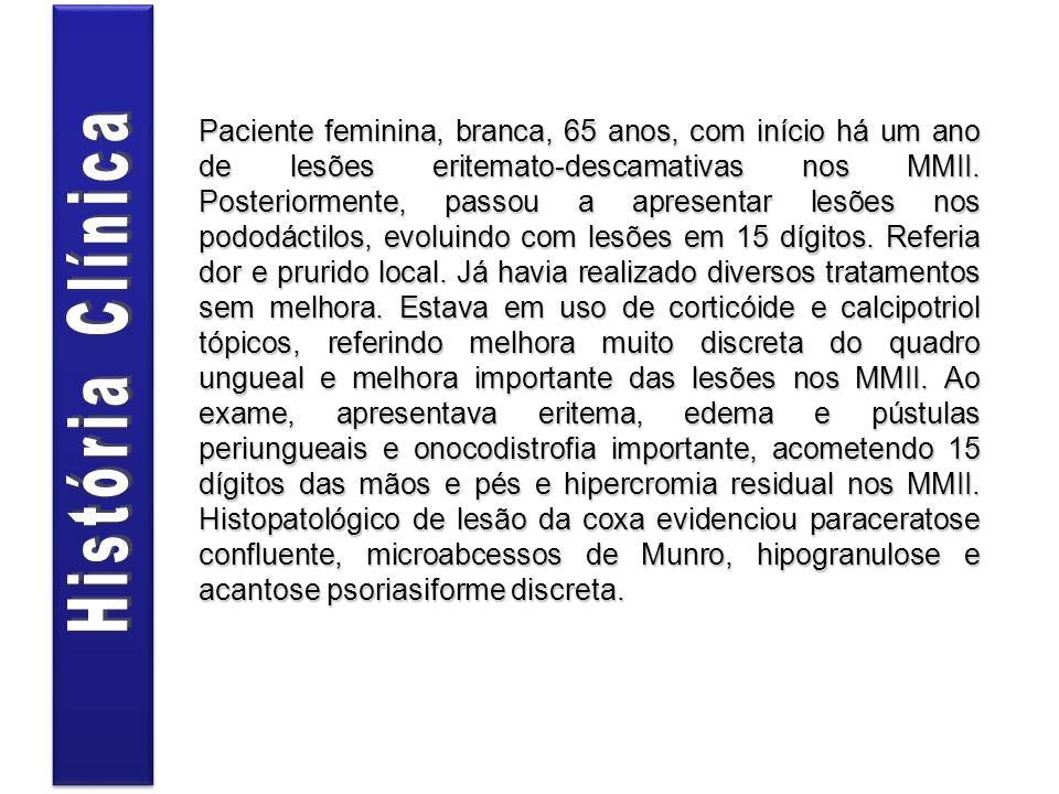 Paciente feminina, branca, 65 anos, com início há um ano de lesões eritemato-descamativas nos MMII. Posteriormente, passou a apresentar lesões nos pod