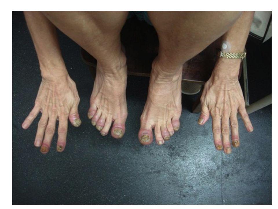 Histopatológico de lesão da coxa evidenciou paraceratose confluente, microabcessos de Munro, hipogranulose e acantose psoriasiforme discreta.