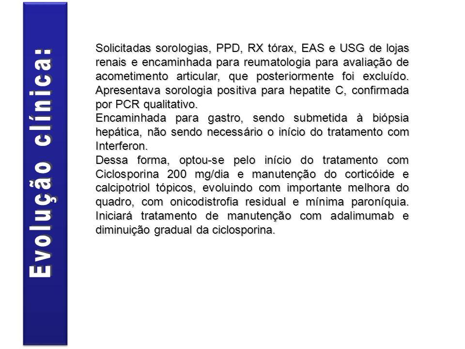 Solicitadas sorologias, PPD, RX tórax, EAS e USG de lojas renais e encaminhada para reumatologia para avaliação de acometimento articular, que posteri