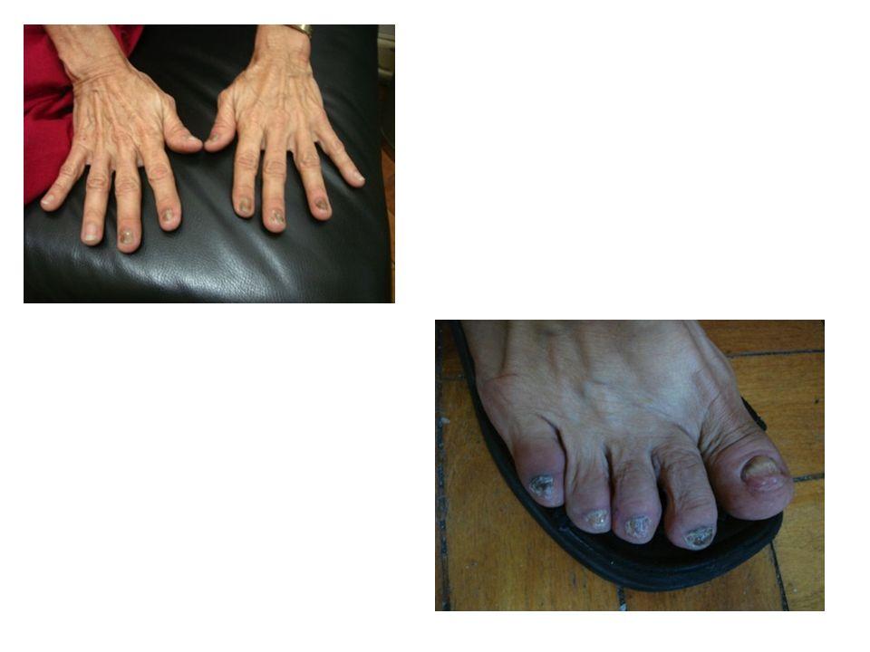 A ACH é uma doença rara, crônica e recorrente, caracterizada por erupção pustulosa estéril, envolvendo predominantemente as falanges distais das mãos e pés, causando lesões dolorosas e incapacitantes.