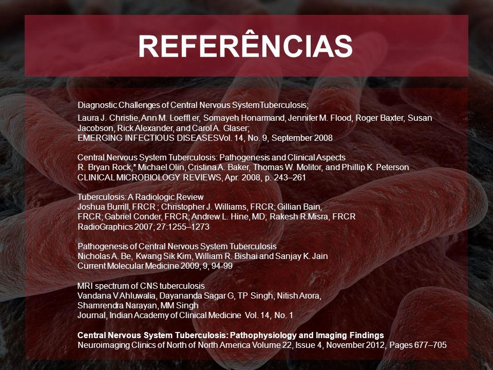 REFERÊNCIAS Diagnostic Challenges of Central Nervous SystemTuberculosis; Laura J. Christie, Ann M. Loeffl er, Somayeh Honarmand, Jennifer M. Flood, Ro